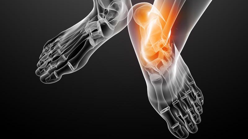 Joint Pain Conditions   Integrated Pain Consultants Scottsdale