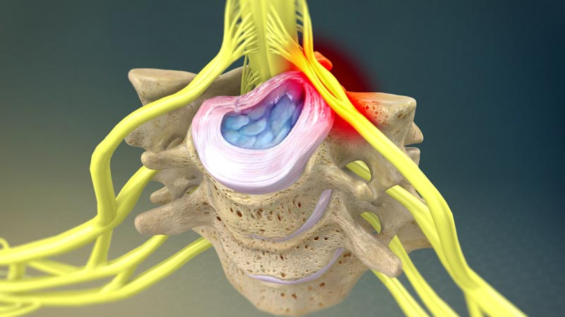 Nerve Pain Conditions | Integrated Pain Consultants Scottsdale