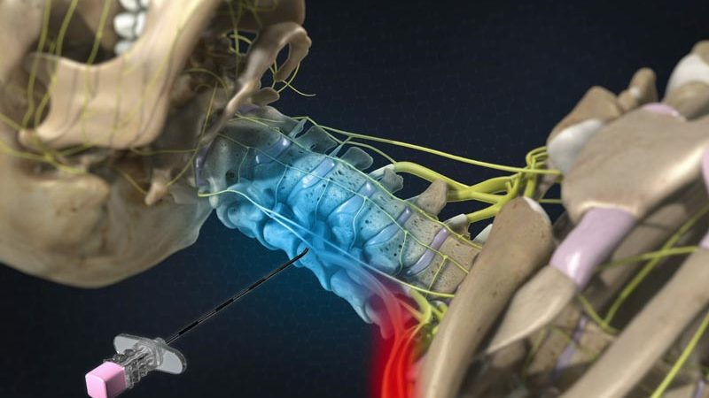 Neck Pain Conditions | Integrated Pain Consultants Scottsdale