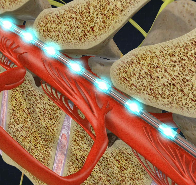 Spinal Cord Stimulation | Integrated Pain Consultants Scottsdale and Phoenix Arizona