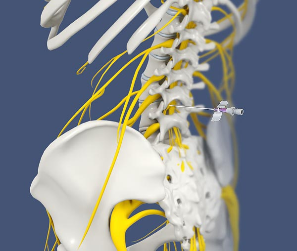 Sympathetic Blocks: Stop Pain at the Source   Integrated Pain Consultants