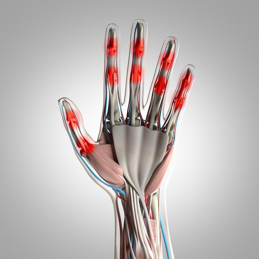 There are Over 100 Types of Arthritis   Integrated Pain Consultants, Mesa
