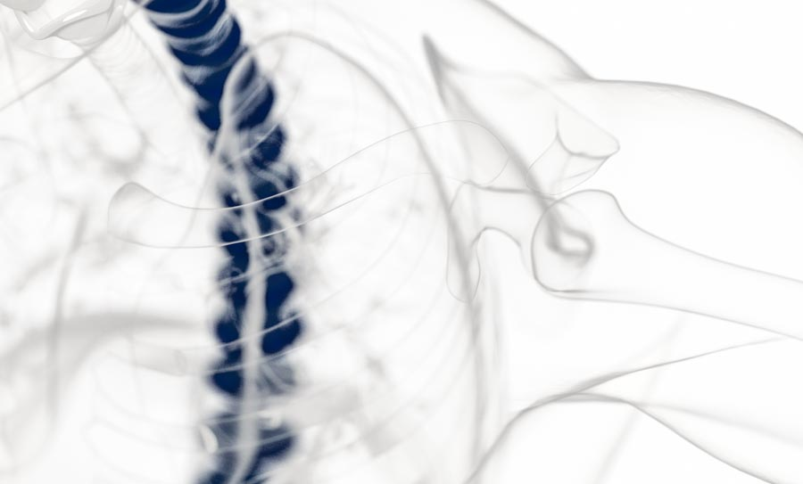 Treating Spinal Stenosis   Integrated Pain Consultants, Scottsdale, Mesa