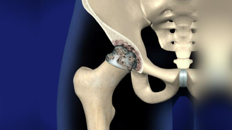Joint Injections | Integrated Pain Consultants Scottsdale and Phoenix Arizona