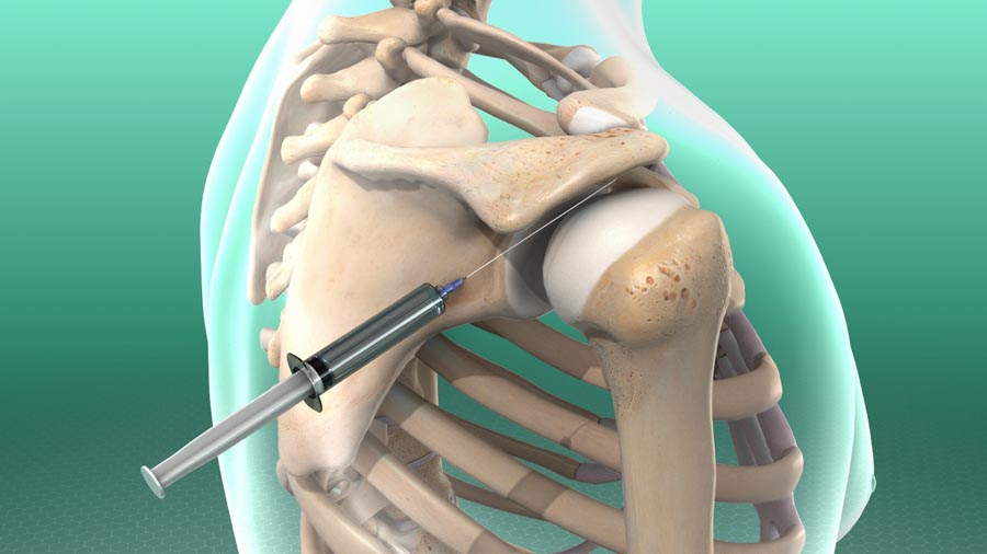 Using Injections to Treat Pain   Integrated Pain Consultants, Scottsdale