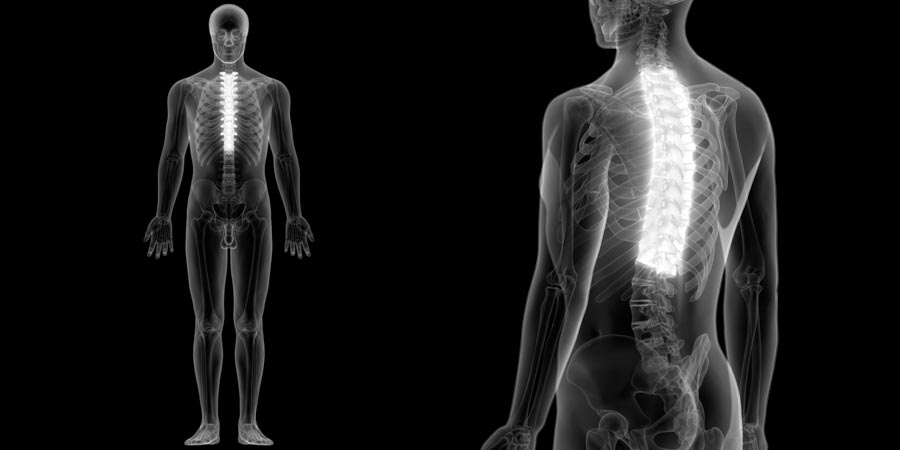 5 Common Back Pain Conditions Treatments | Integrated Pain Consultants