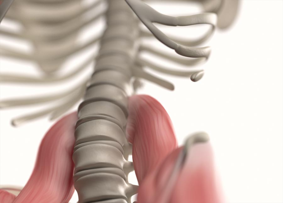 Causes of Radicular Pain or Sciatica | Integrated Pain Consultants, Mesa