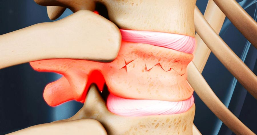 I Have a Compression Fracture: Now What? | Integrated Pain Consultants