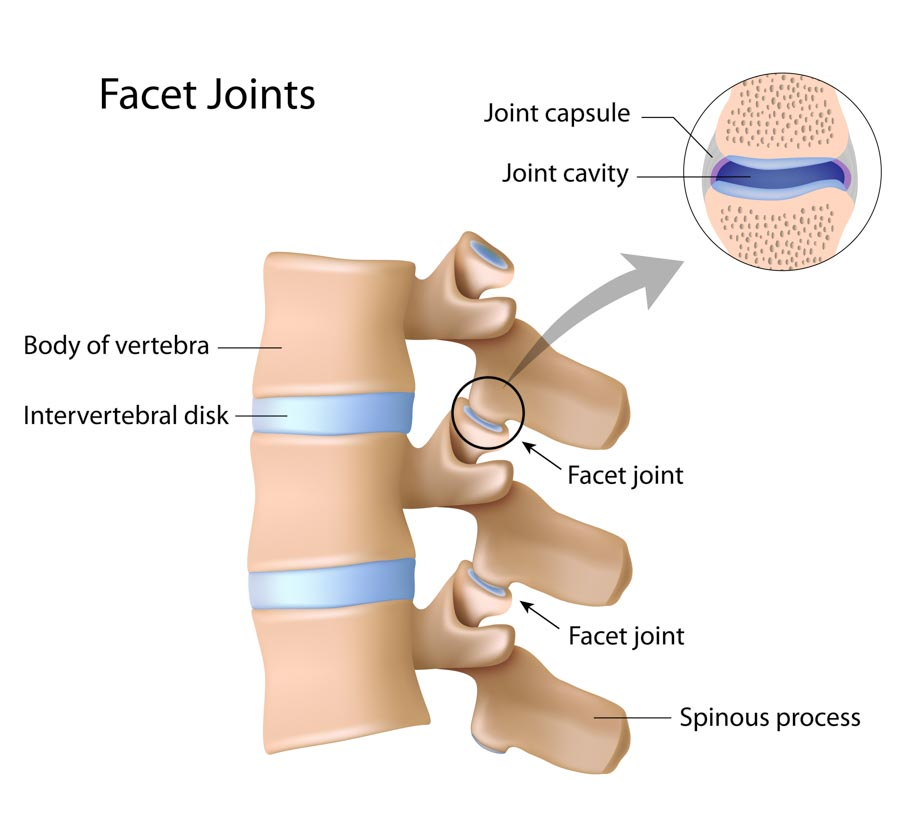 Arthritis and Facet Joints | Dr. Nikesh Seth, Integrated Pain Consultants, Scottsdale